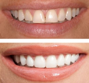 Cosmetic Dentistry changes dull, crooked teeth to a refreshed, natural smile