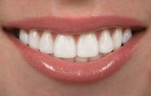A closeup of a smile.