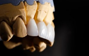 model of porcelain veneers