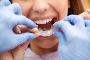 Woman putting in Invisalign in Framingham aligner