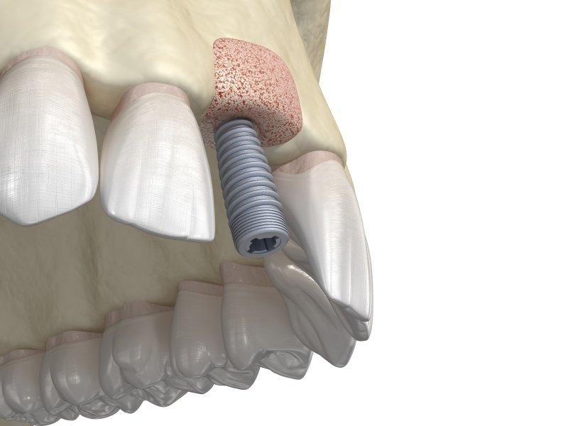 Digital illustration of bone graft and dental implant